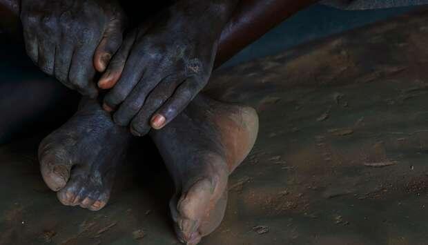 Gadis Ini Ampuni Ibunya Meski Ditulari HIV Saat Lahir