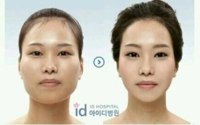 Ironisnya Perbedaan Operasi Plastik Korea Selatan dengan Barat