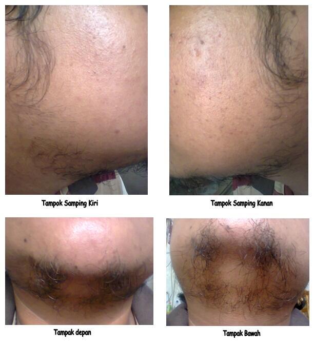 ombak beard oil vs wak doyok Obat Penumbuh Bulu Paling Ampuh Source · GROUP BREWOK BRENGOZER
