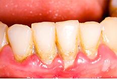 Apakah Pasta Gigi Yang Ente Pilih Sudah Tepat Jangan Asal Pakai Gan