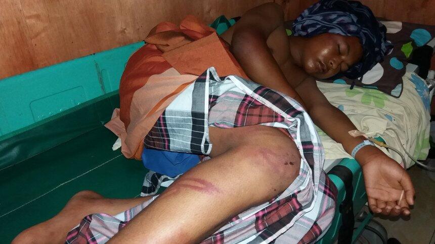 Kasihan Banget Gan, Bocah Ini Korban Salah Tangkap Dianiaya Pula