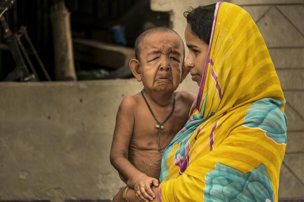 """Penampakan """"Seorang Bocah dan Pria Tua"""" Dalam Satu Raga di Bangladesh"""