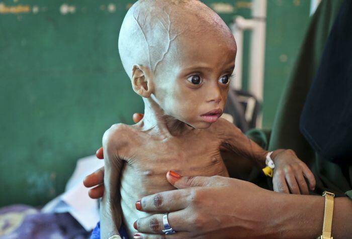 20 juta orang di empat negara terancam mati kelaparan
