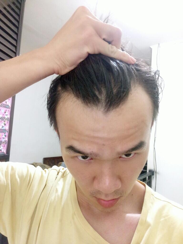 +80 Potongan Rambut Pria Botak - Model Rambut
