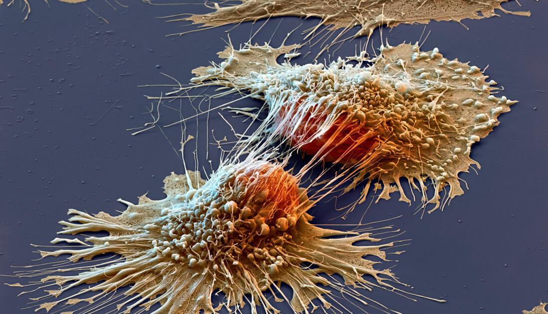 Apa Yang Perlu Kita Ketahui Tentang Kanker ?