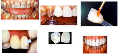 Risih Dengan Gigi Yang Berwarna Kuning Segera Atasi Dengan Cara Ini