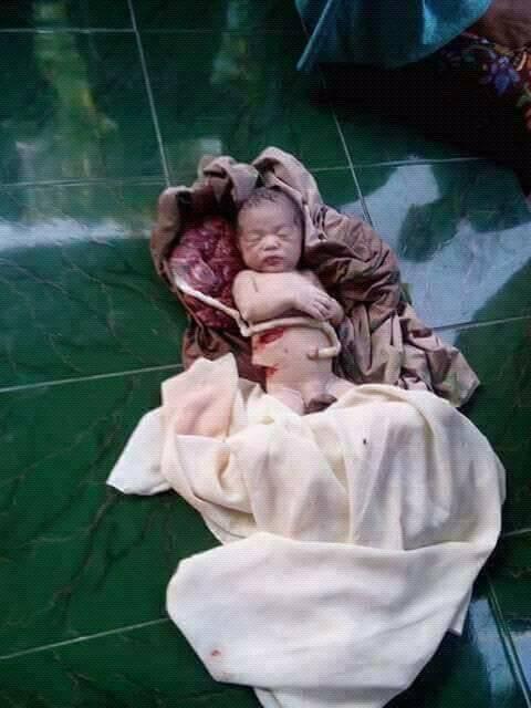 Bayi baru lahir, langsung dibacok.