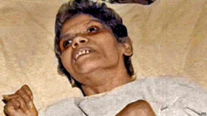 Disodomi, Koma Selama 42 Tahun, dan Akhirnya Meninggal