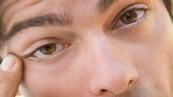 Mata Kerap Kedutan Menandakan Apa? Simak Penjelasan Ahli Kesehatan