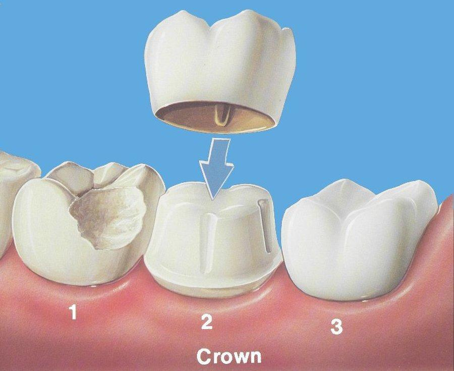 Pengalaman Pasang Gigi Palsu