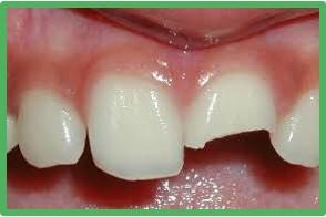 Perawatan Gigi dan Mulut
