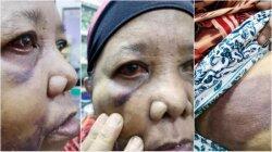 TKW Berusia 62 Tahun Ini Disiksa oleh Majikannya di Malaysia Hingga Tuli