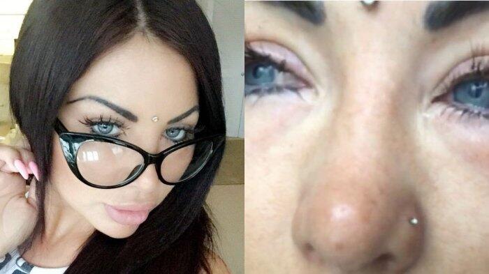 Lakukan Operasi untuk Mengubah Warna Matanya, Nasib Selebgram Ini Malah Mengerikan