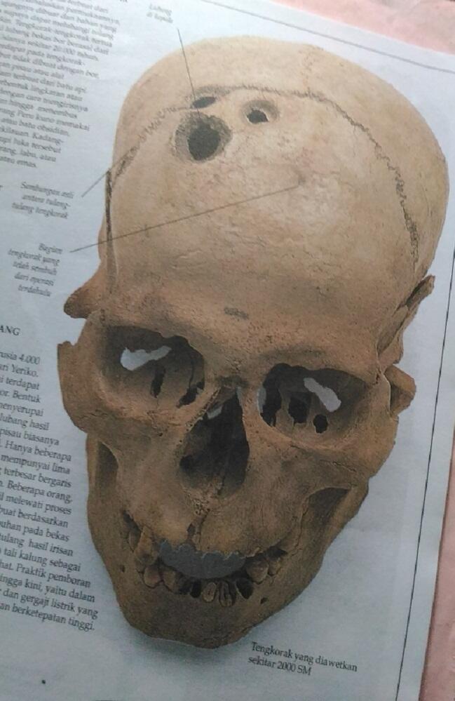 Teknik Medis Kuno Dengan Melubangi Kepala Pasien