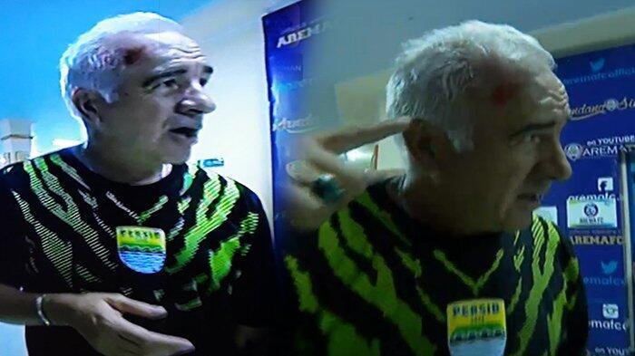 Laga Melawan Arema Berakhir Ricuh, Pelatih Persib Mario Gomes Berdarah di Kepala!