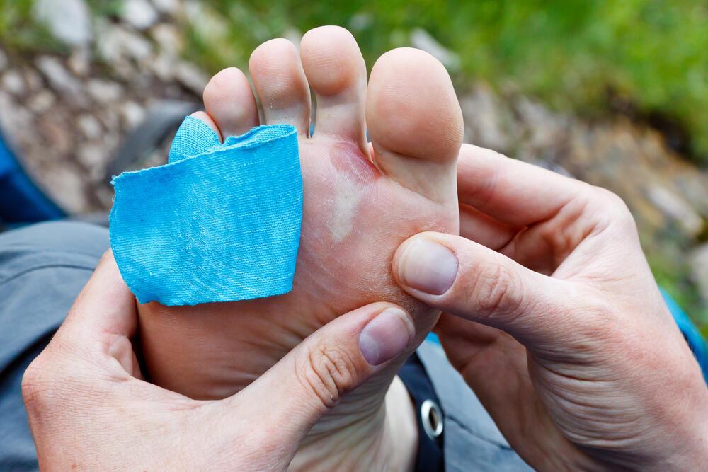 Inilah Beberapa Tips Untuk Mencegah Kaki Lecet karena Sepatu Baru