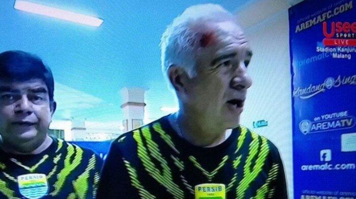 Kondisi Pelatih Persib Membaik: Ardi Idrus Juga Terkena Lemparan di Mata Kiri