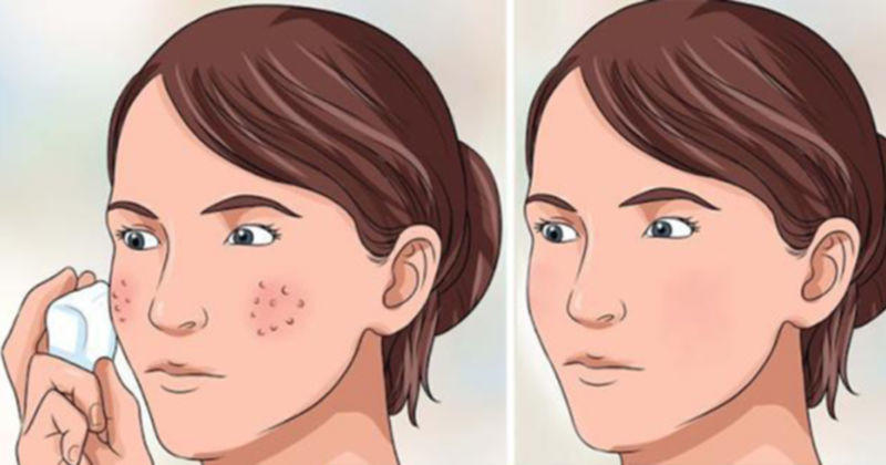 3 Hal Sederhana agar Pori-Pori Wajah Mengecil