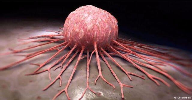 5 Penyakit Kanker Pada Manusia Beserta Penjelasannya