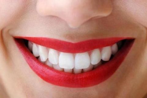 Minuman Nyegerin Ini Punya Manfaat Penting Bagi Keaehatan Gigi