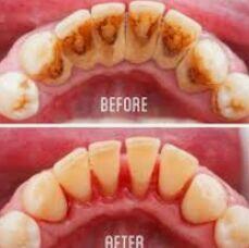 Cukup Dengan Trik Sederhana Ini Karang Gigi Rontok Seketika Dalam 5