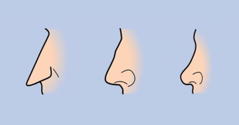 Tebak Karakter Dari Bentuk Hidung Yuk, Gan!