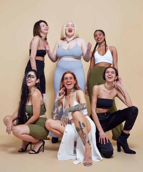 Siapa sangka,para wanita ini menjadi model karena ketidaksempurnaan fisiknya