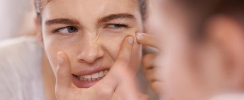 9 Fakta yang Perlu Kamu Perhatikan Jika Ingin Mengurangi Jerawat