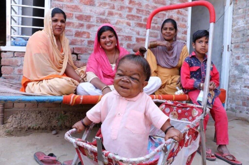 Di India Ada Pria Terjebak Dalam Tubuh Bayi