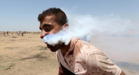 Ngeri, Tabung Gas Air Mata Tertancap di Pipi Warga Palestina