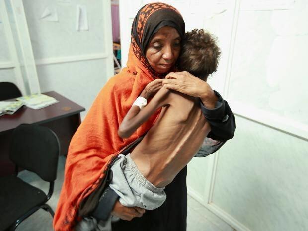 Duka, Tangis Dan Kelaparan Menyelimuti Suasana Ramadhan Di Yaman