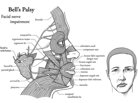 Wajah lumpuh sebelah, pengalaman Bell's palsy