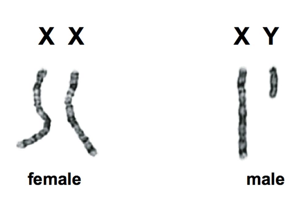 Mengenal Sindrom Klinefelter: Pria yang Memiliki Payudara Seperti Wanita