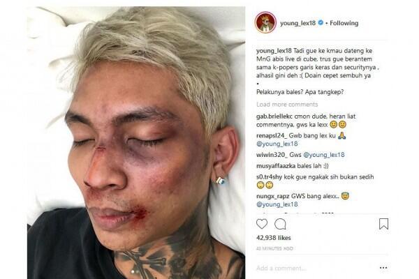 Klarifikasi Shopee Terkait Young Lex Yang Babak Belur