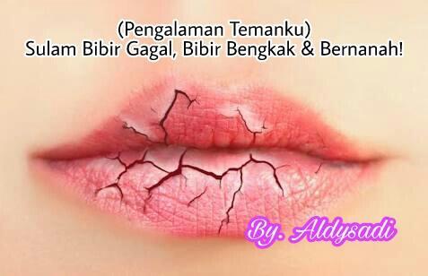 sulam bibir gagal bibir bengkak amp bernanah pengalaman