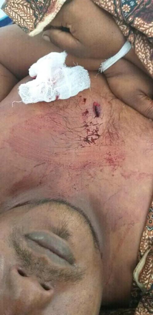 Ditembaki OTK... Riau
