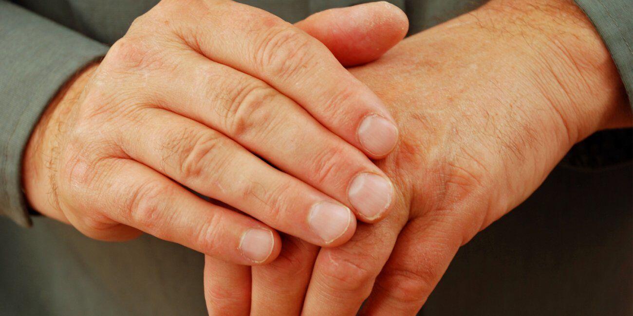 Sering Gunakan Hand Sanitizer Bisa Menyebabkan 5 Masalah Kulit Ini