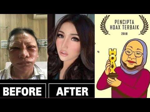 Ratna Sarumpaet Dicurigai Dipaksa Berbohong Agar Jokowi Menang