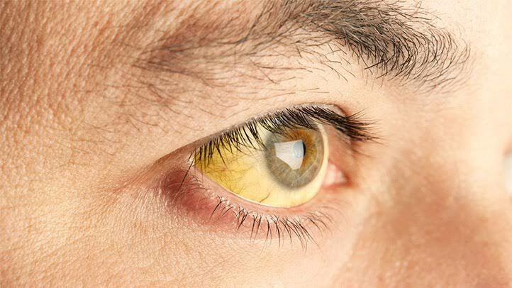 Benar-Benar Usir Penyakit, Ini 10 Manfaat Teh Hijau