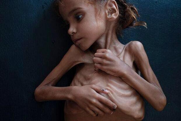 Gadis Cilik Simbol Krisis Kemanusiaan di Yaman Meninggal