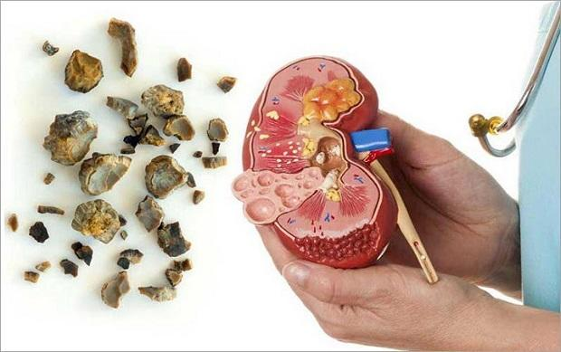 8 Cara Mencegah Penyakit Batu Ginjal Yang Bisa Mematikan