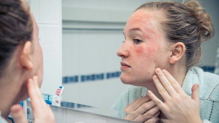 5 Efek Buruk Jika Kamu Terlalu Banyak Pakai Produk Perawatan Kulit