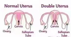 Astaga !! Ada Wanita Ber Vagina Dua, Tapi Bisa Hidup Normal Loh Gan.