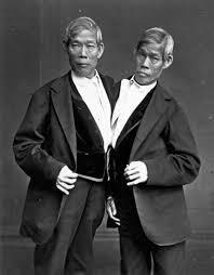 5 (lima) Kisah Manusia Kembar Siam Yang Menggemparkan Dunia