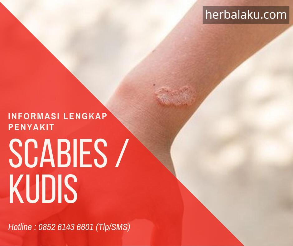 Scabies - Penyakit Kulit Yang Sangat Mudah Menular