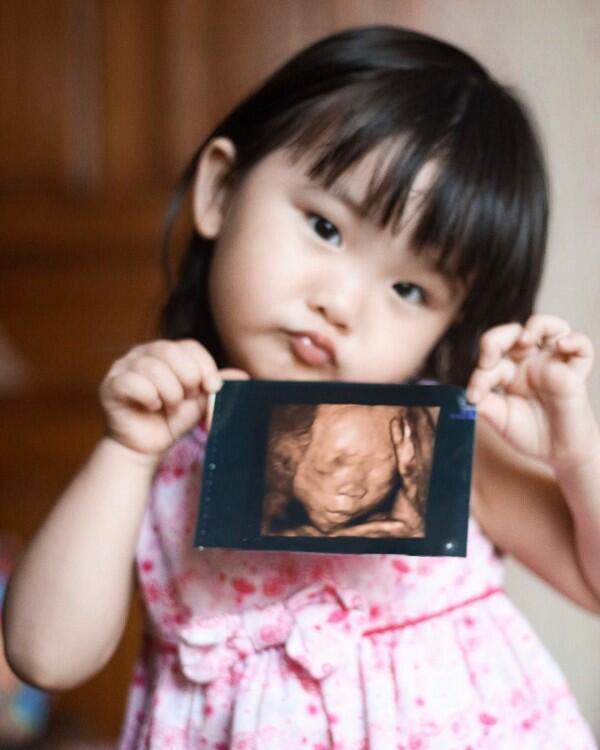 Makin Anggun, 10 Potret Kehamilan Anak Kedua Angel eks Cherrybelle