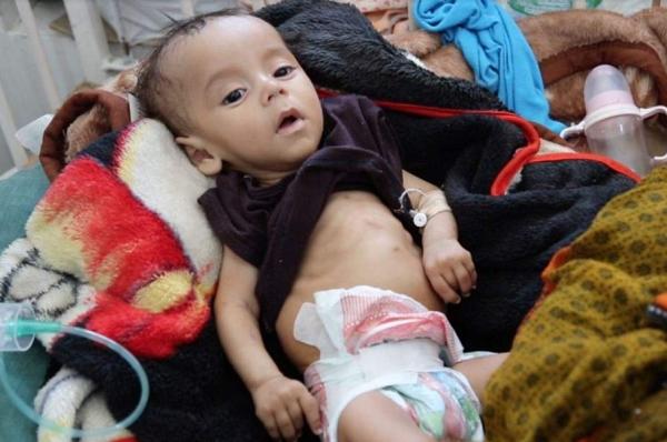 Akibat Perang di Yaman, 85 Ribu Anak Meninggal Karena Malnutrisi