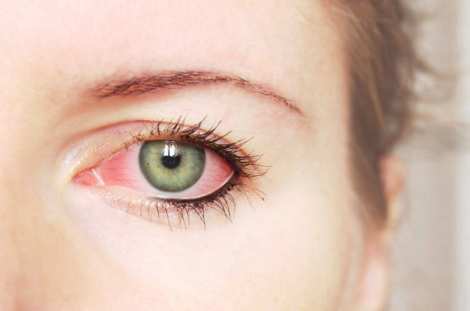 5 Bahaya Mengkhawatirkan Saat Kamu Mengucek Mata, Jangan Teruskan!