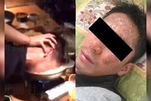 Pria Jepang Gugat Bos Setelah Kepalanya Dicelup ke Kuah Sup Mendidih