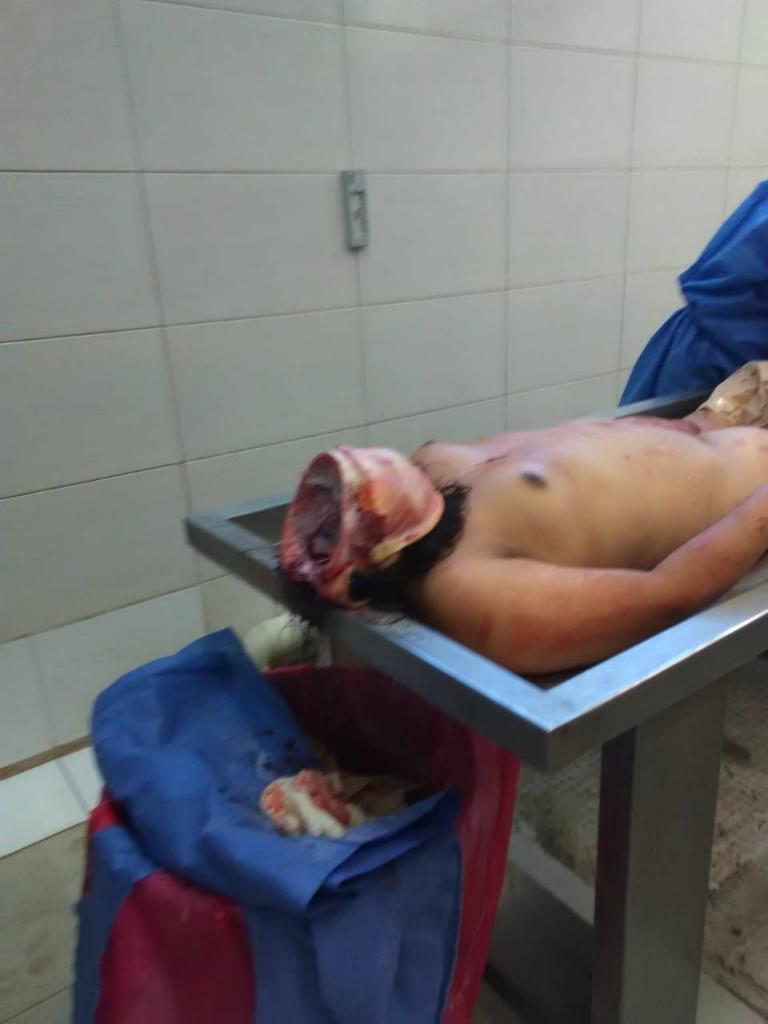 Autopsy para wanita (Bugil) inside 18++++